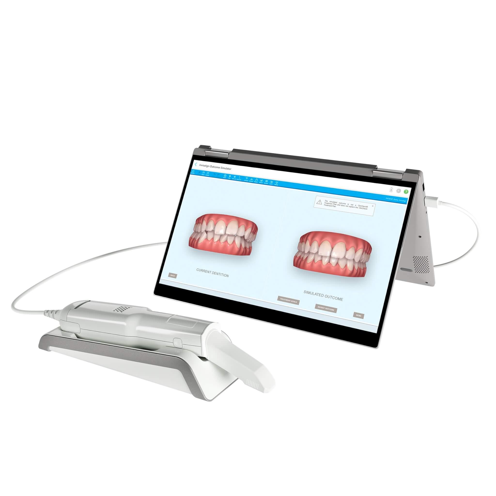 Kieferorthopäden in Essen Scan Simulation bei der Behandlung iTero ElementFlex