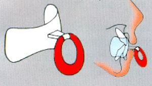 Kieferprobleme vermeiden durch eine Mundvorhofplatte