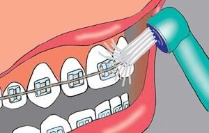 Munddusche benutzen mit einer Zahnspange