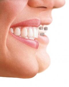 Unsichtbare Zahnschiene in Essen