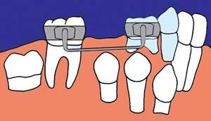 Zahnfehlstellung mit Lückenhaltern verhindern