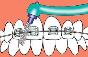 Zahnzwischenraumbürste - Benutzung mit einer Zahnspange